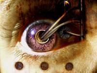 Провода из глаза